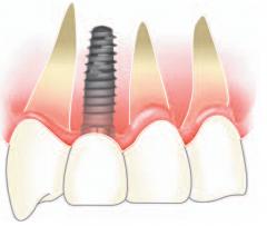 前歯部インプラント