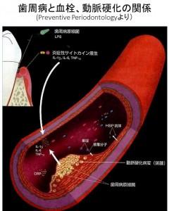 歯周病と血栓
